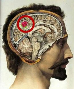 Head w angioma